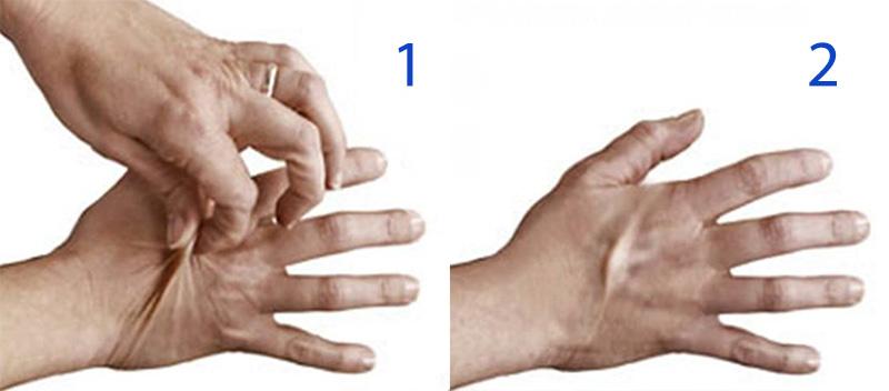 Тест на тургор кожи